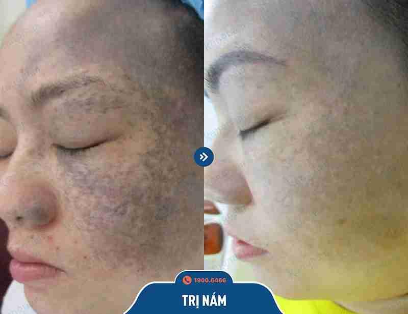 Kết quả ngay sau khi trị tàn nhang tại tmv kangnam
