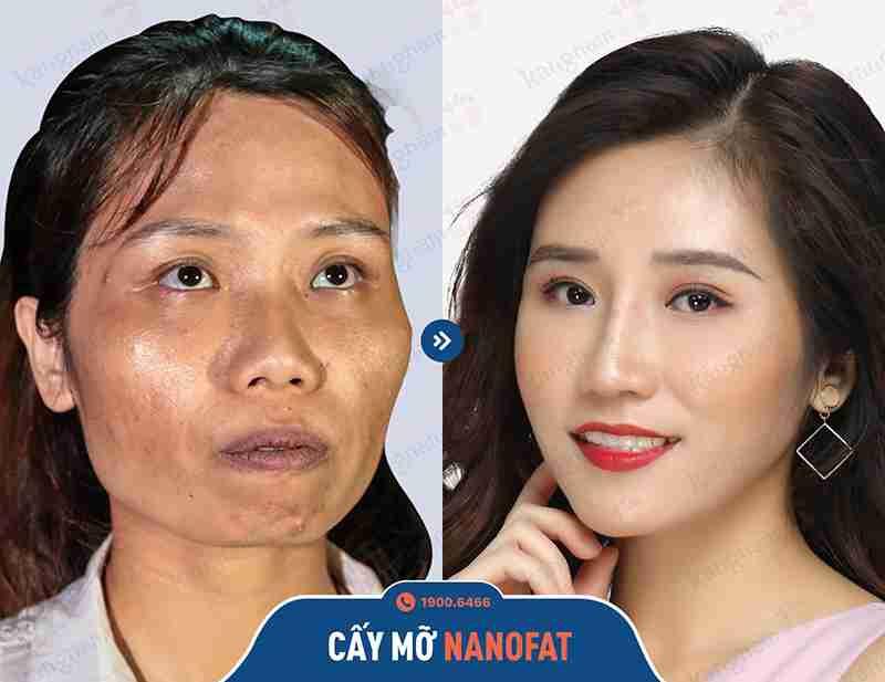 Phương pháp căng da mặt tại bvtm kangnam