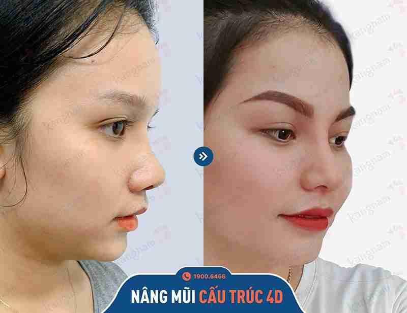 Trước và sau khi thẩm mỹ nâng mũi