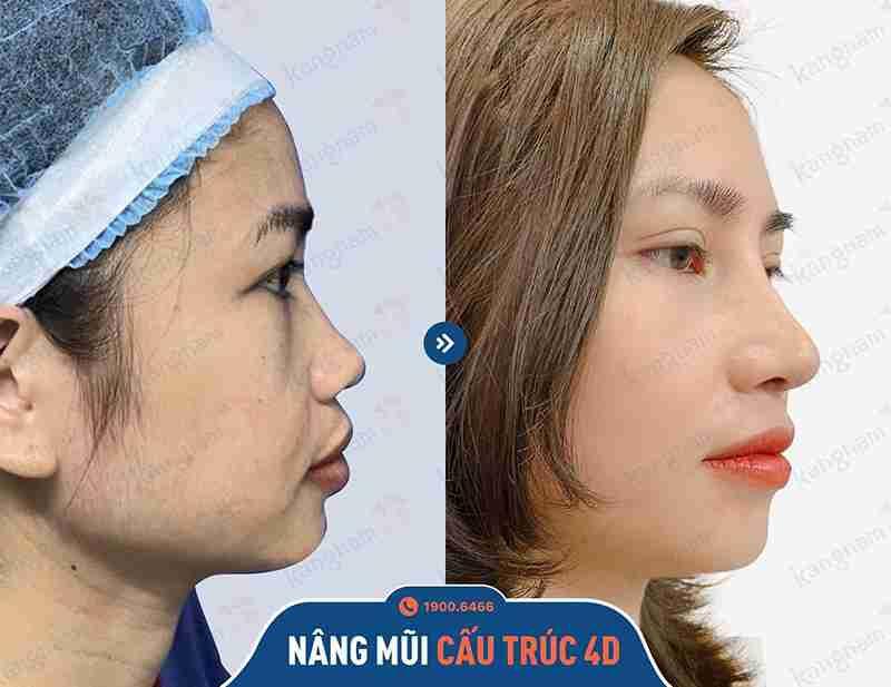 Kết quả của khách hàng sau khi sử dụng dịch vụ nâng mũi tại Kangnam