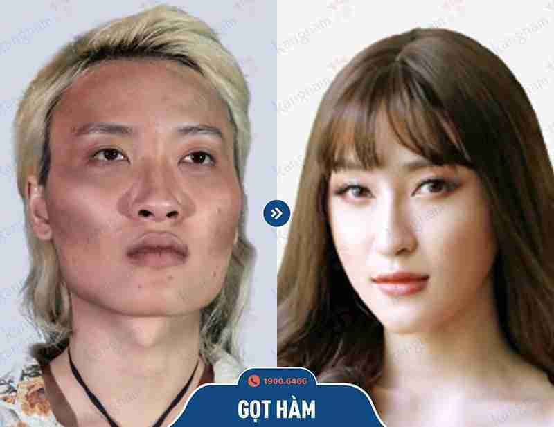 Kết quả khách hàng sau khi phẫu thuật hàm mặt