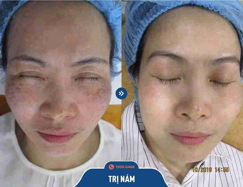 Công nghệ chữa tàn nhang hiệu quả tại kangnam