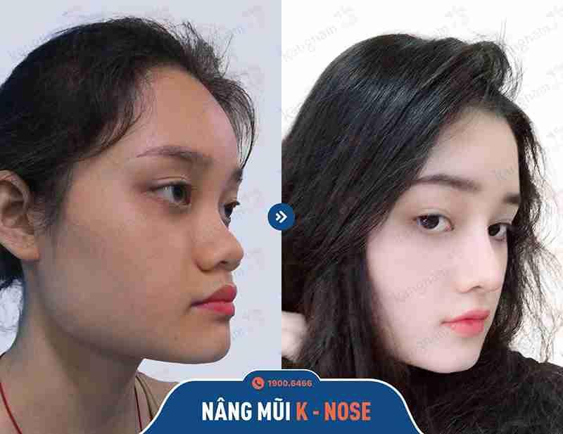 sửa mũi đẹp thẩm mỹ kangnam