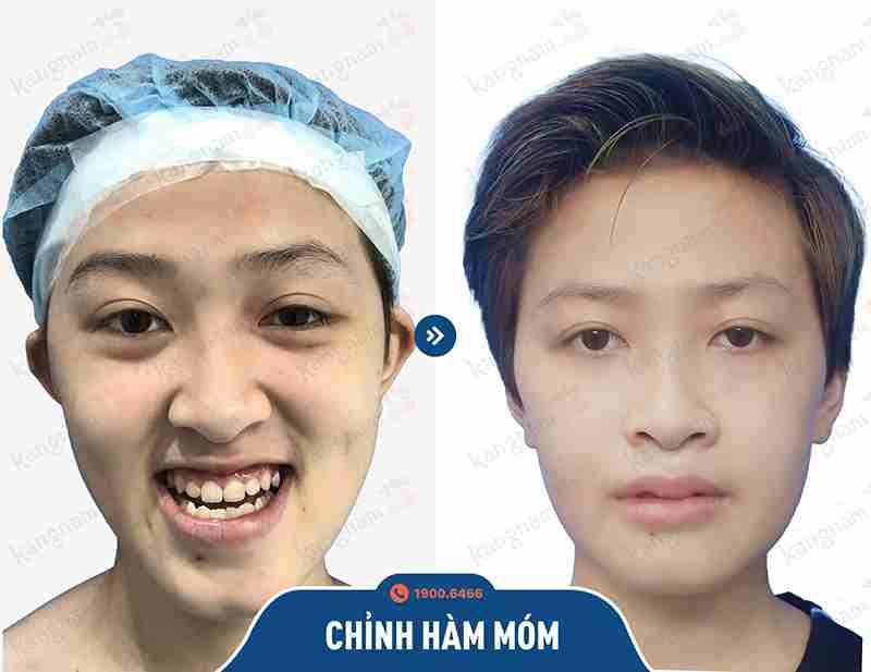 Kết quả trước và sau khi phẫu thuật hàm mặt