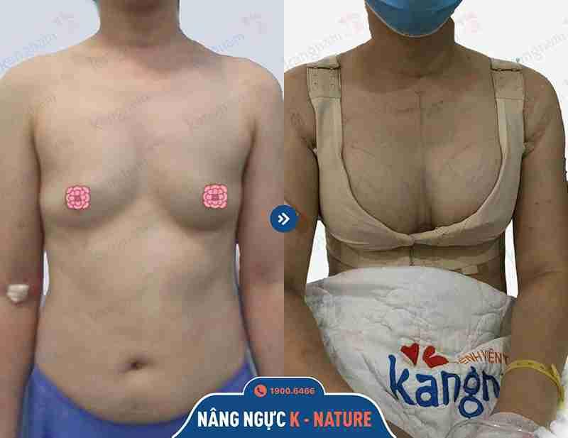 Kỹ thuật nâng ngực thẩm mỹ tại Kangnam