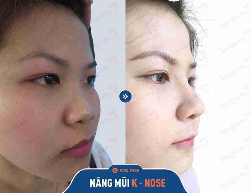 Kỹ thuật nâng mũi thẩm mỹ tại vtm kangnam