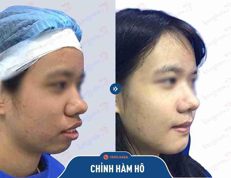 Kỹ thuật chỉnh hô hàm mặt hiệu quả tại kangnam