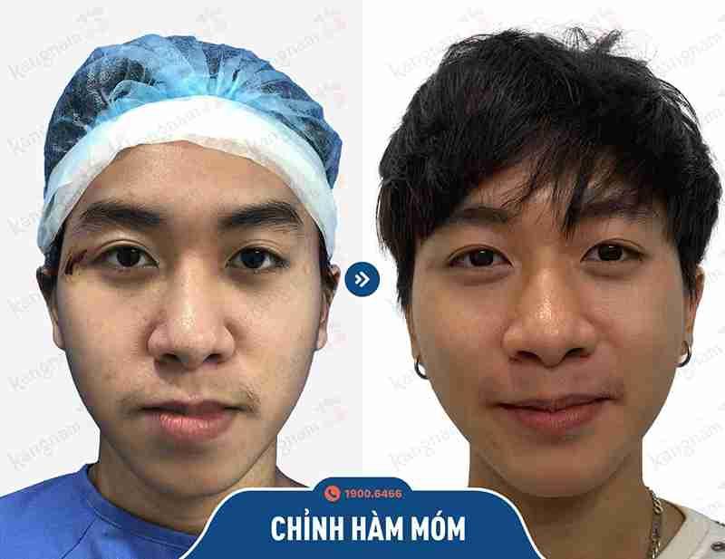 Trước và sau khi phẫu thuật hàm mặt
