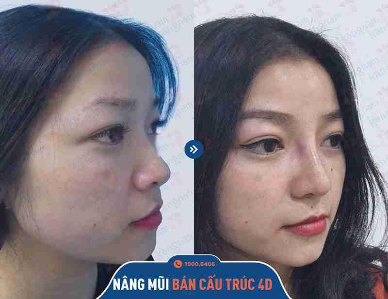 chỉnh hình mũi ở kangnam