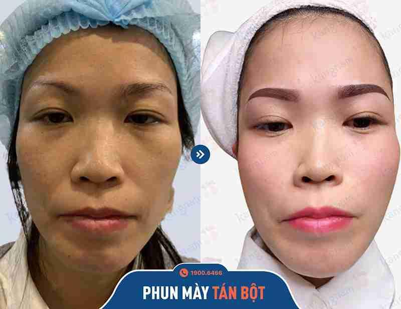 Kết quả trước và sau khi đi phun xăm tại spa kangnam