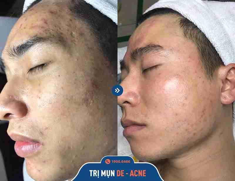 Kết quả sau khi trị mụn tại Kangnam