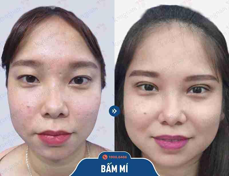 kết quả thẩm mỹ vùng mắt kangnam