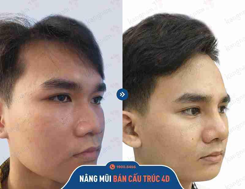 kỹ thuật chỉnh hình mũi kangnam