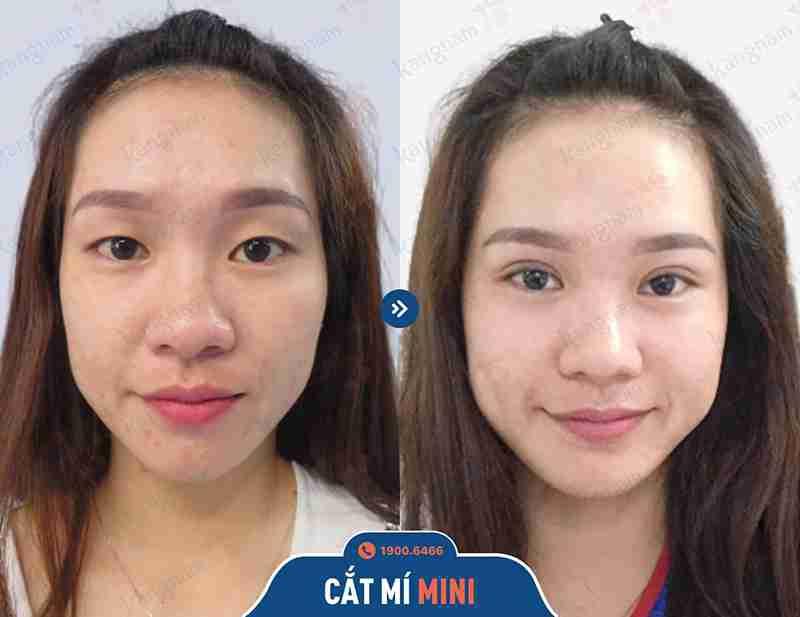 kết quả chỉnh hình vùng mắt