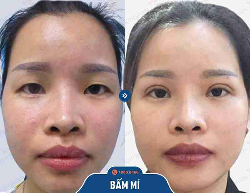 kết quả dịch vụ cắt mí mắt