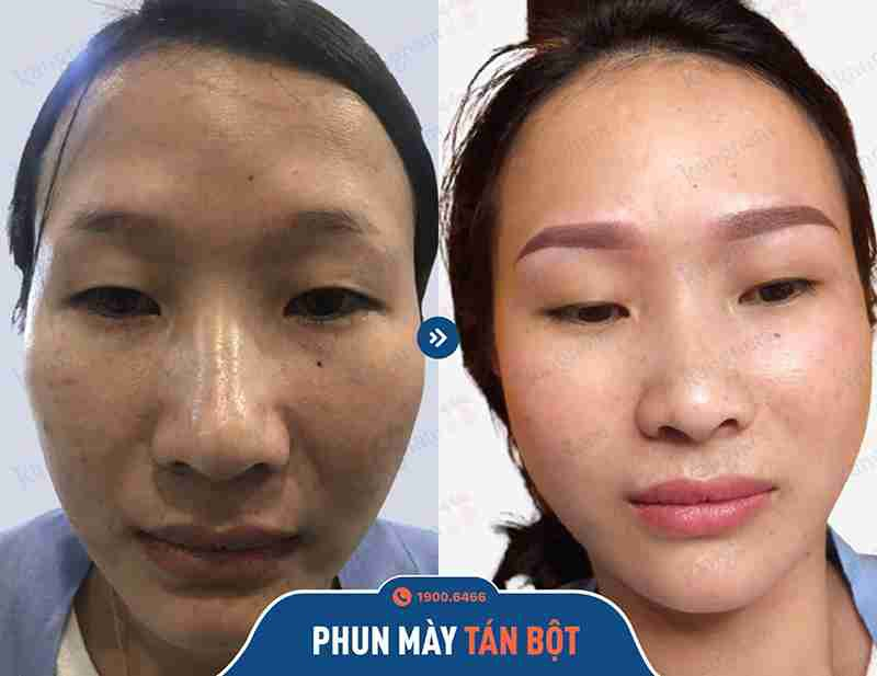 Before và After sau khi phun xăm thẩm mỹ