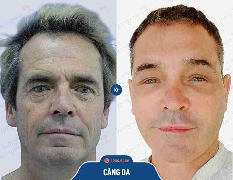 Kết quả khách hàng trước và sau khi căng da