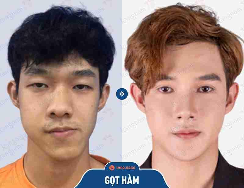 Before và After phẫu thuật hàm mặt
