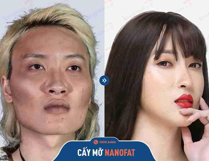 Hình ảnh khách hàng sau khi căng da tại Kangnam