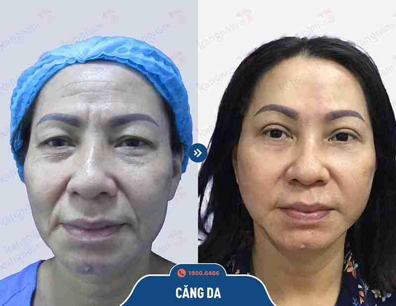 Hình trước trước và sau khi căng da của khách hàng.