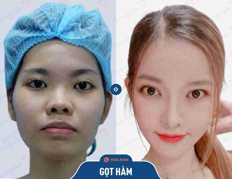Hình ảnh sau khi phẫu thuật hàm mặt