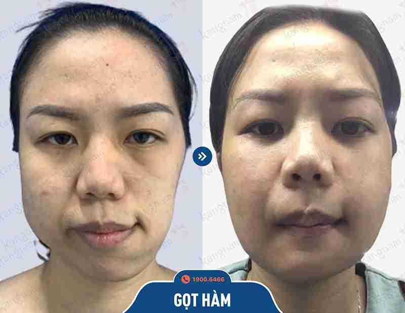 Sự hiệu quả khi phẫu thuật hàm mặt tại kangnam