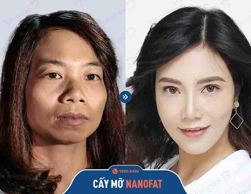 Chia sẻ hình ảnh khách hàng căng da mặt tại Kangnam