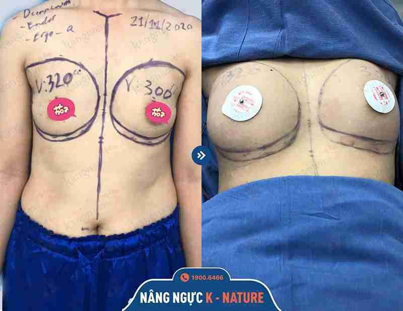 Hình ảnh trước và sau khi nâng ngực
