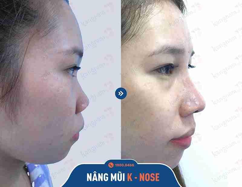 hình ảnh before và after sau khi nâng mũi