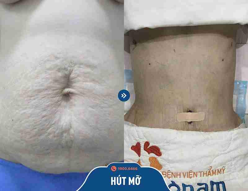Hình ảnh khách hàng sau khi giảm mỡ tại tmv kangnam