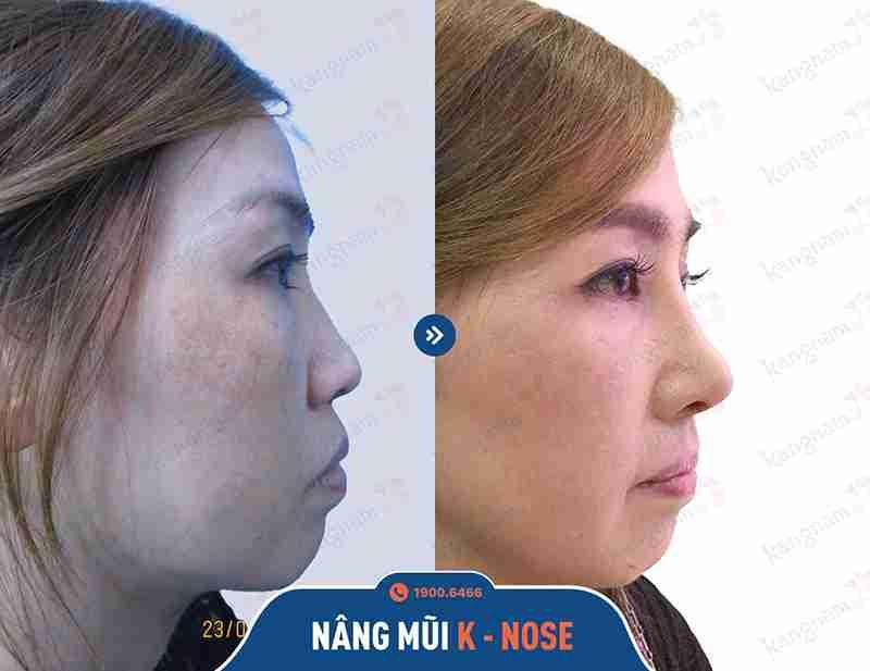 Hình ảnh phản ánh kết quả khách hàng khi nâng mũi tại kangnam
