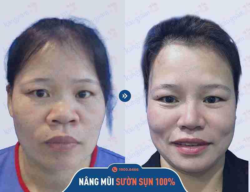 ảnh trước sau thẩm mỹ mũi kangnam