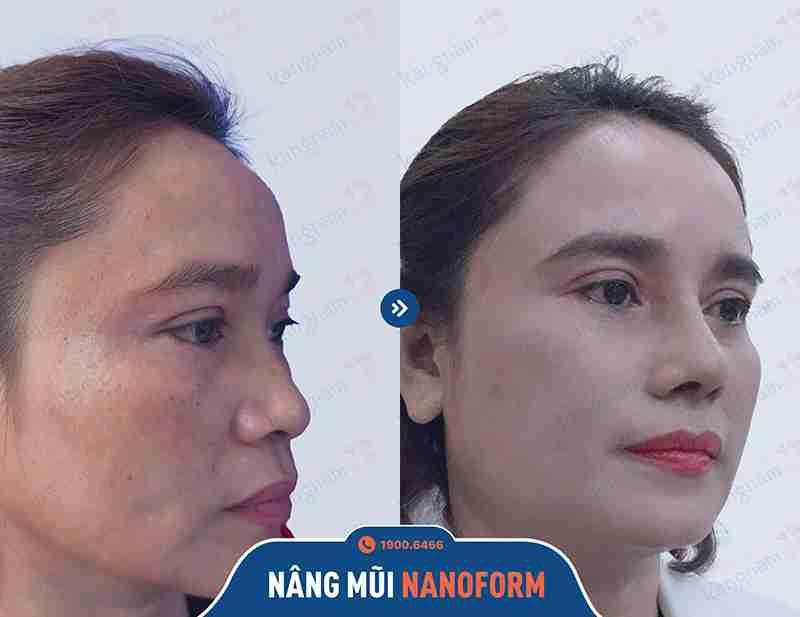 ảnh trước sau khách hàng khi làm mũi tại kangnam