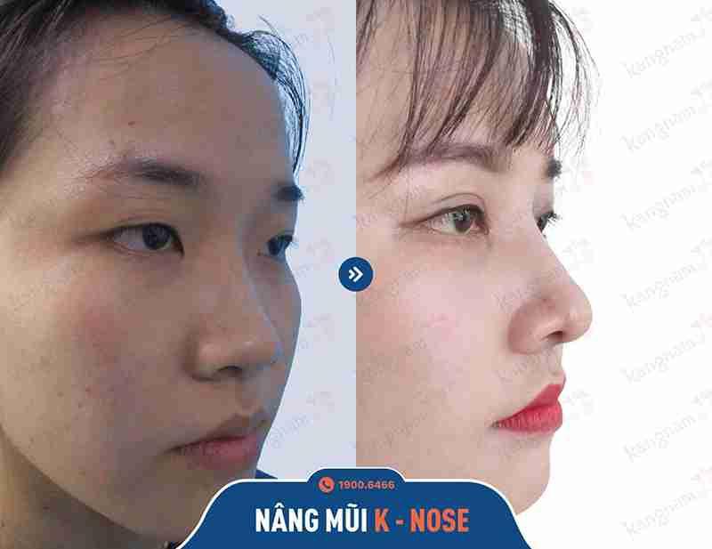 Hình ảnh trước và sau khi nâng mũi tại Kangnam