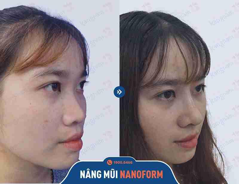 Hình ảnh khách hàng nâng mũi tại bvtm kangnam