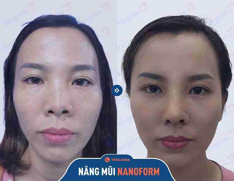 Sự hiệu quả khi nâng mũi tại Kangnam