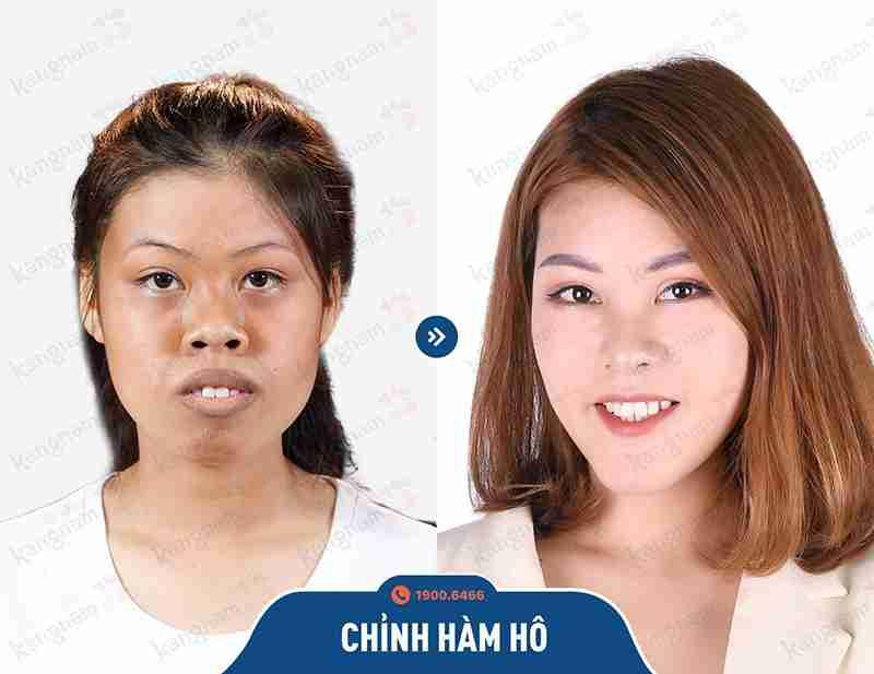 Cải thiện những khuyết điểm về hàm mặt tại kangnam
