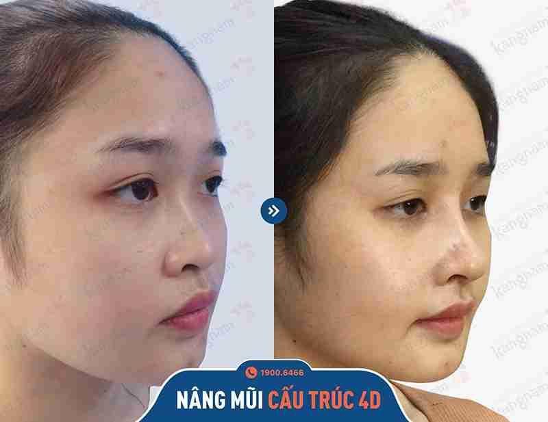 Phương pháp nâng mũi thẩm mỹ tại Kangnam