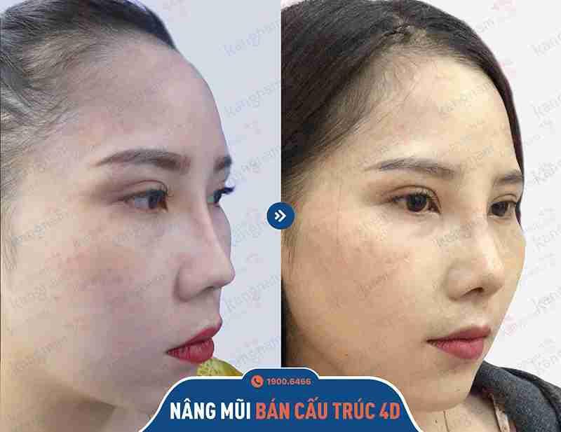 kết quả khách hàng thẩm mỹ mũi