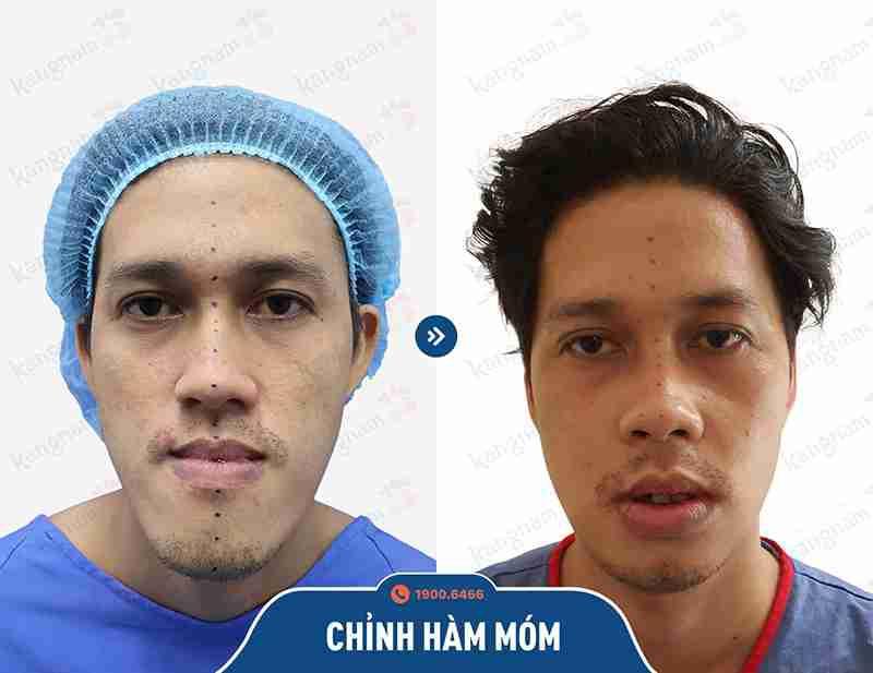 Hình ảnh khách hàng sau khi phẫu thuật hàm mặt tại kangnam