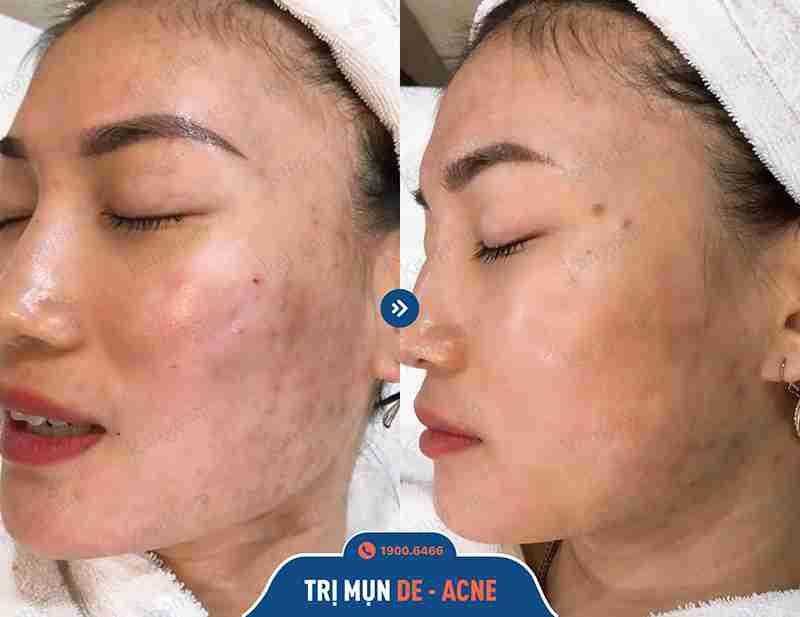 Hình ảnh trước và sau khi chữa mụn