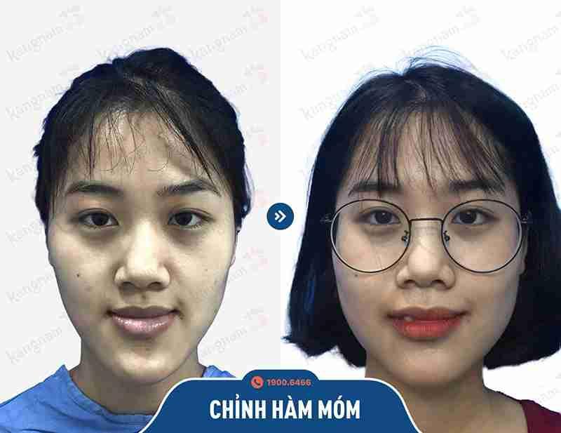 Hình ảnh trước và sau khi phẫu thuật hàm mặt