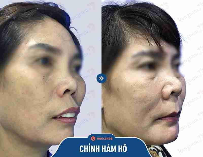 Cải thiện tình trạng hàm hô tại vtm kangnam