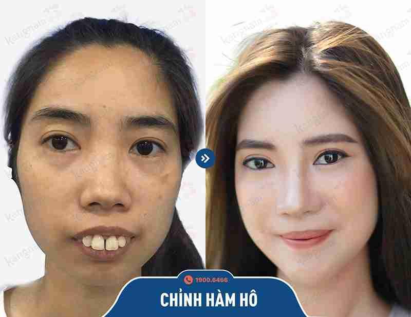 Khách hàng trước và sau khi phẫu thuật hàm mặt