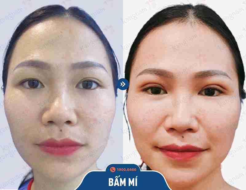 dịch vụ thẩm mỹ mắt ở kangnam
