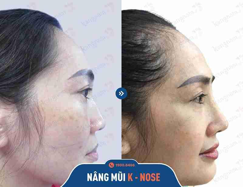 Feedback của khách hàng về thẩm mỹ nâng mũi