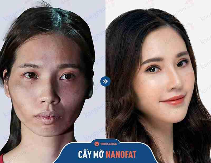 Sự thay đổi của khách hàng sau khi căng da