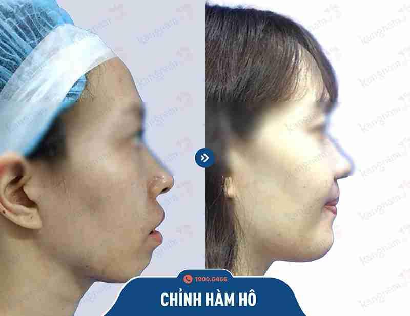 Thành quả sau khi phẫu thuật hàm hô tại kangnam