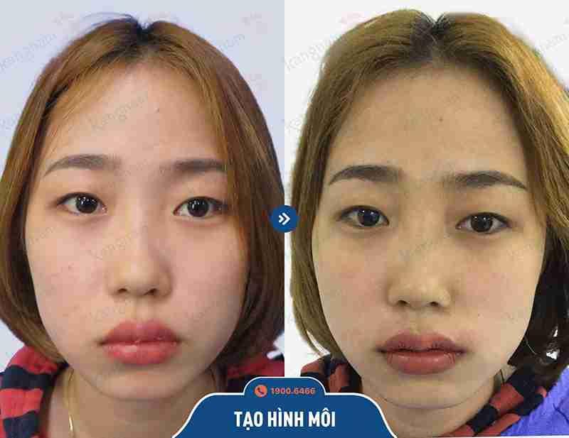 Hình ảnh trước và sau khi tạo hình môi