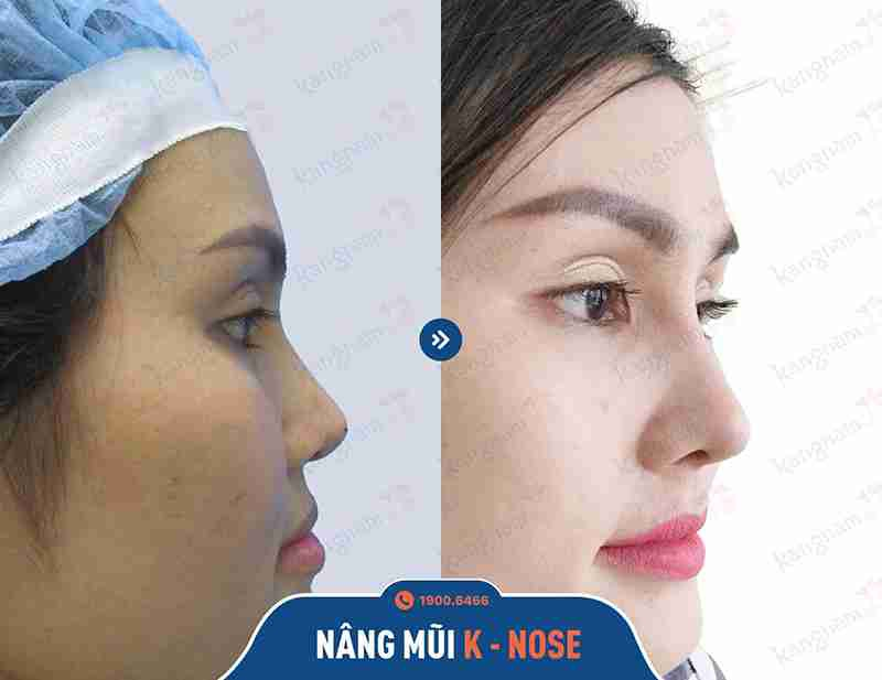 kết quả phẫu thuật mũi